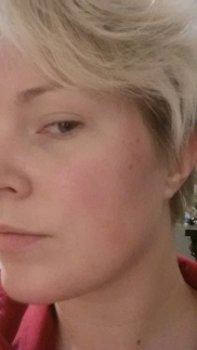 I didn't take before face pics, but here is now. Only a couple new breakouts.